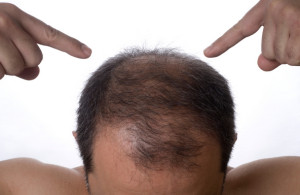 hair transplant abroad - choose Budapest, Hungary