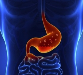 Acid Reflux Cure - Silent reflux treatment in Budapest