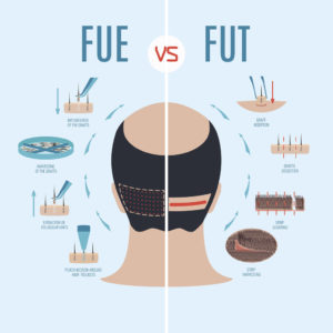 FUE hair transplant UK cost