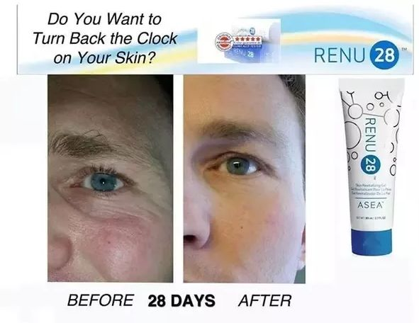 Asea renu 28 before and after image