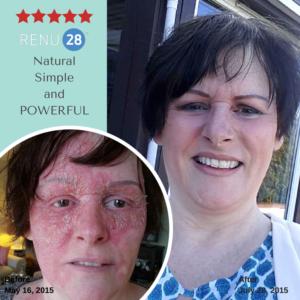 Renu 28 for eczema and psoriasis