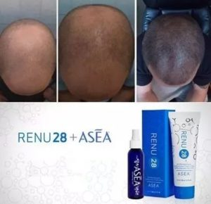 RENU28 for hair loss - Hair growth before and after picture
