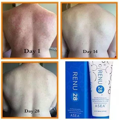 RENU 28 for skin rejuvenation